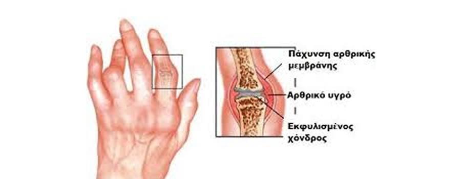 ρευματοειδής-αρθρίτιδα
