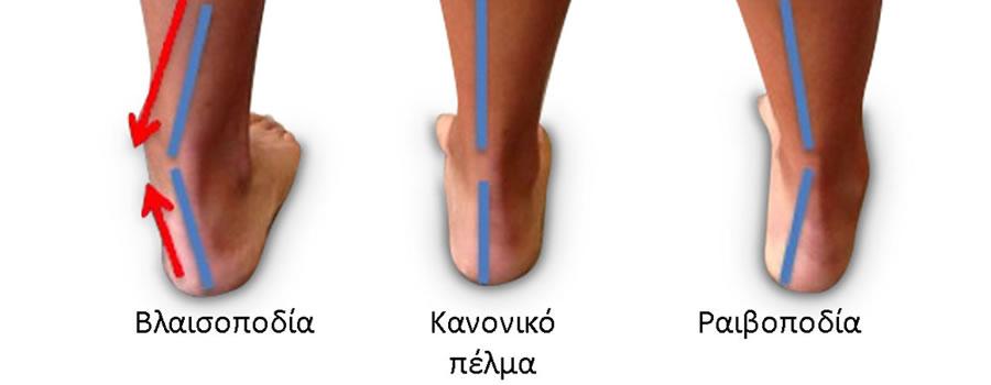 βλαισοποδία - ραιβοποδία